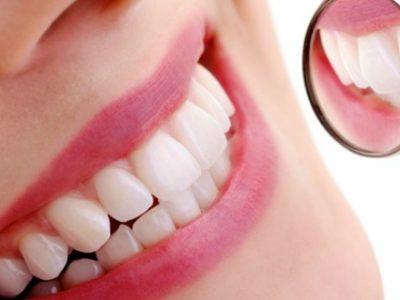 «Καμπανάκι» για τη λεύκανση των δοντιών